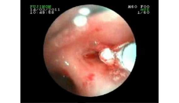 girişimsel bronloloji,Bronchoscopy (Diagnostic Test)